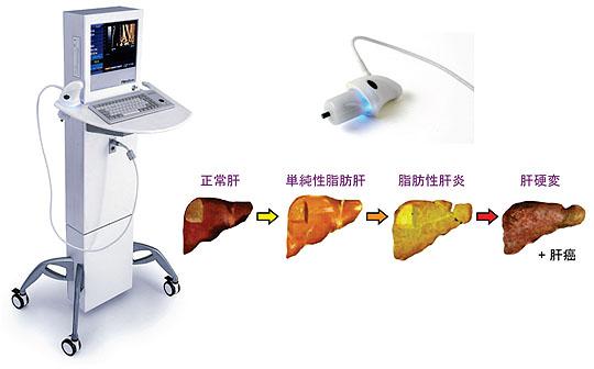 写真5:肝線維化と肝弾性度測定 1